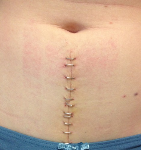 This was taken right before 7 of the 13 staples were removed. Its going to be a beautiful scar! Can you picture a zipper pull tatto at the top?